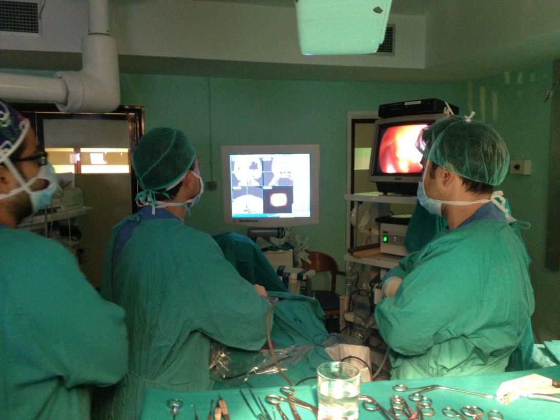 en que consiste la operacion por sinusitis
