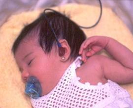 Programa de detección precoz de hipoacusia neonatal